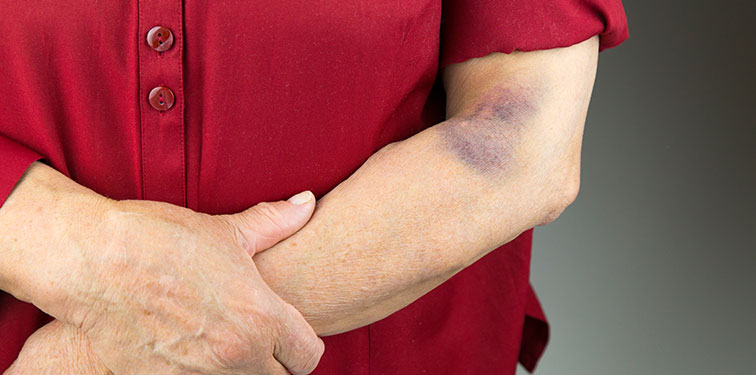 Why We Bruise Easier as We Age and How to Prevent It