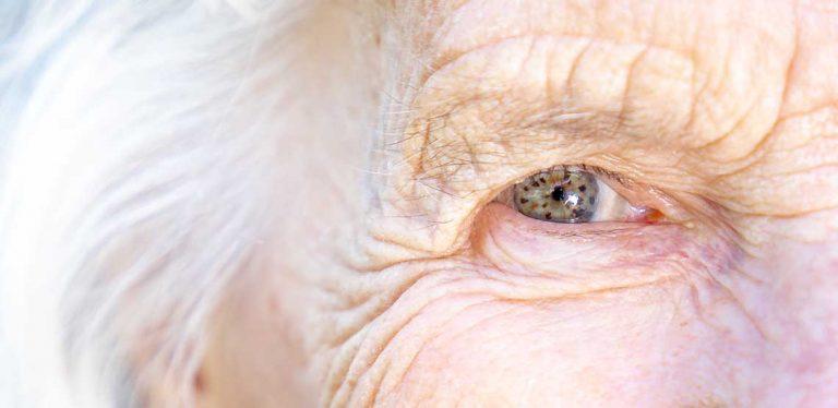 A close-up of an elderly's eyeball.