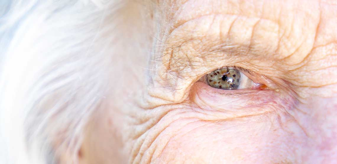 A close-up of an elderly's eyeball.